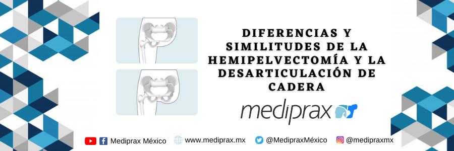 diferencias-y-similitudes-en-la-hemipelvectomía-y-la-desarticulación-de-cadera