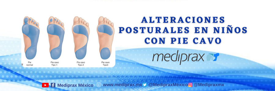 alteraciones-posturales-por-el-pie-cavo