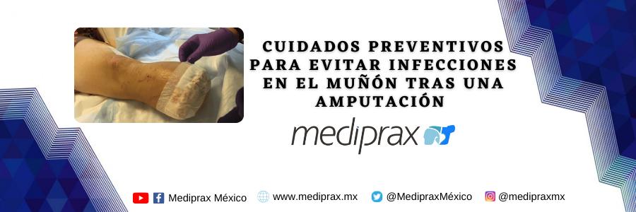 Cuidados preventivos para evitar infecciones en el muñón tras una amputación