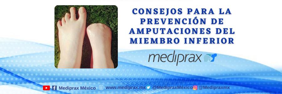 consejos-para-la-prevención-de-amputaciones-del-miembro-inferior