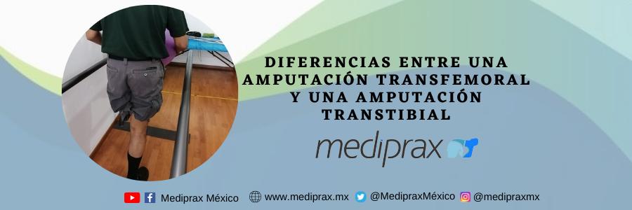 Diferencias entre una amputación transfemoral y una amputación transtibial