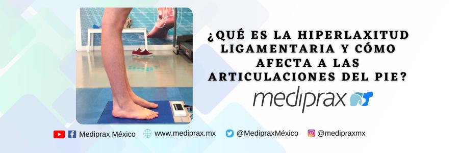 ¿Qué es la hiperlaxitud ligamentaria y cómo afecta a las articulaciones del pie?