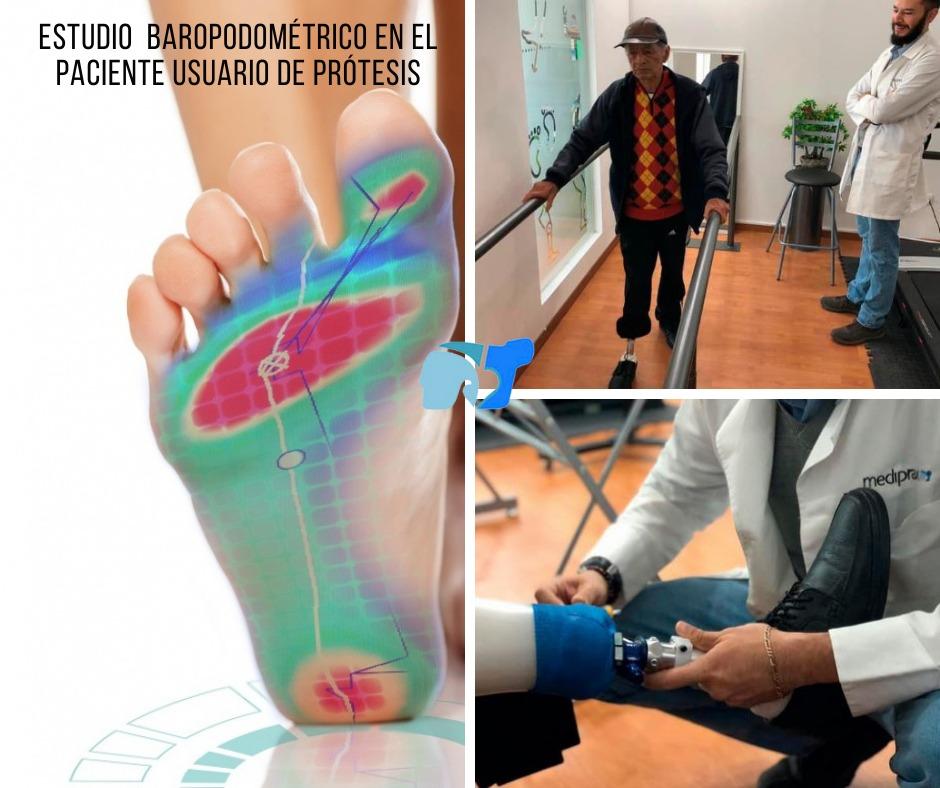 estudio-baropodometrico-para-usuarios-de-prótesis-de-pierna