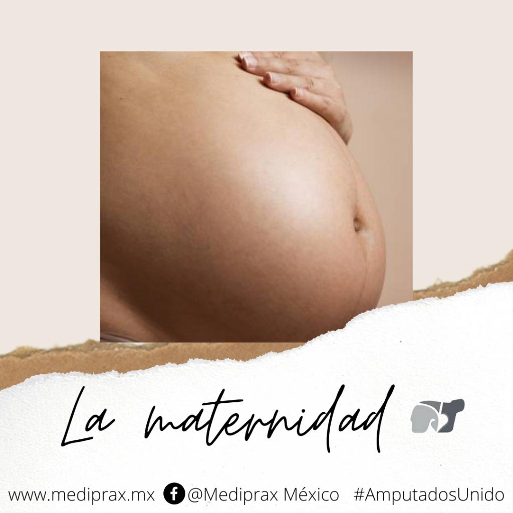 embarazo-y-prótesis-de-pierna (1)