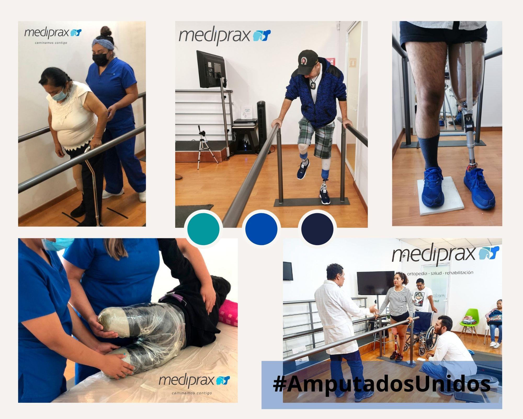 entrenamiento-de-la-marcha-con-protesis-de-pierna