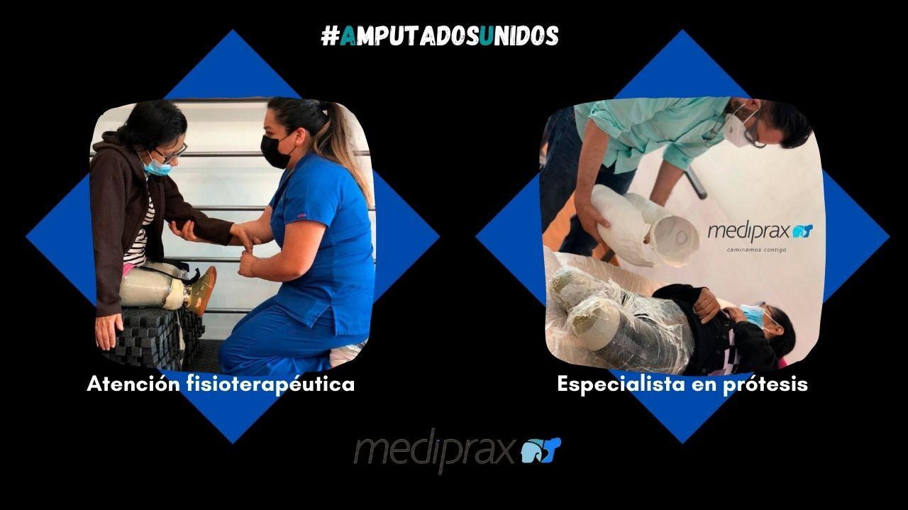 equipo-multidisciplinario-para-amputados