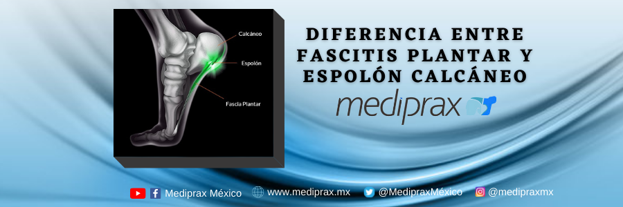 fascitis-plantar-espolon