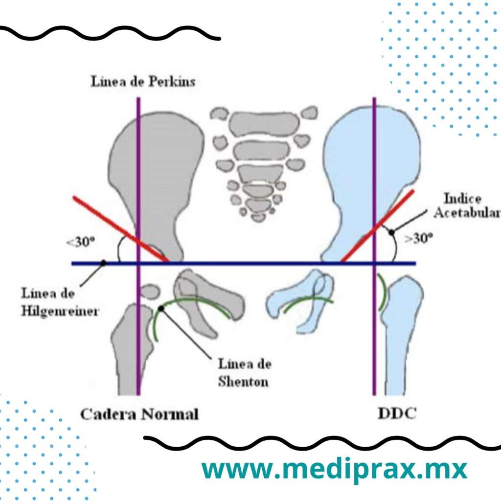 luxación-congénita-de-cadera-en-niños-con-síndrome-de-down