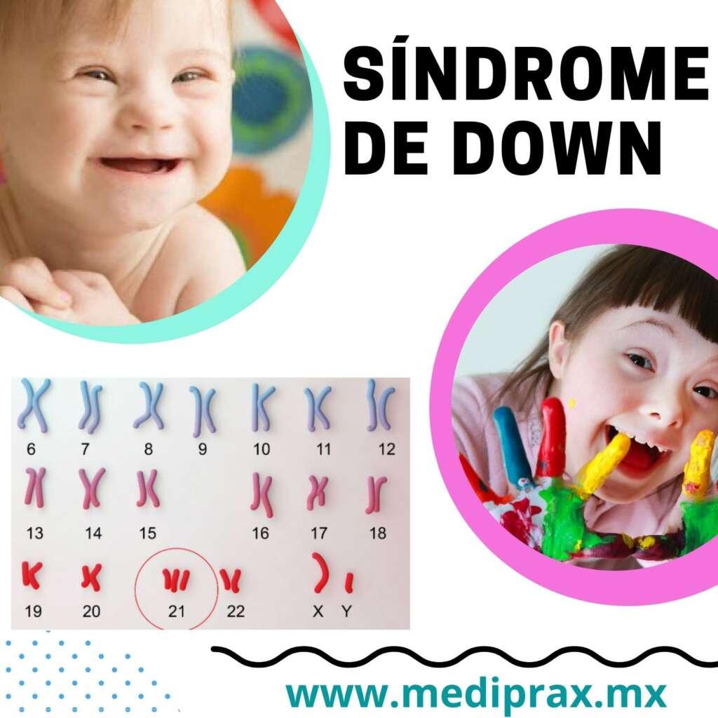 genu-valgo-en-niños-con-síndrome-de-down (2)