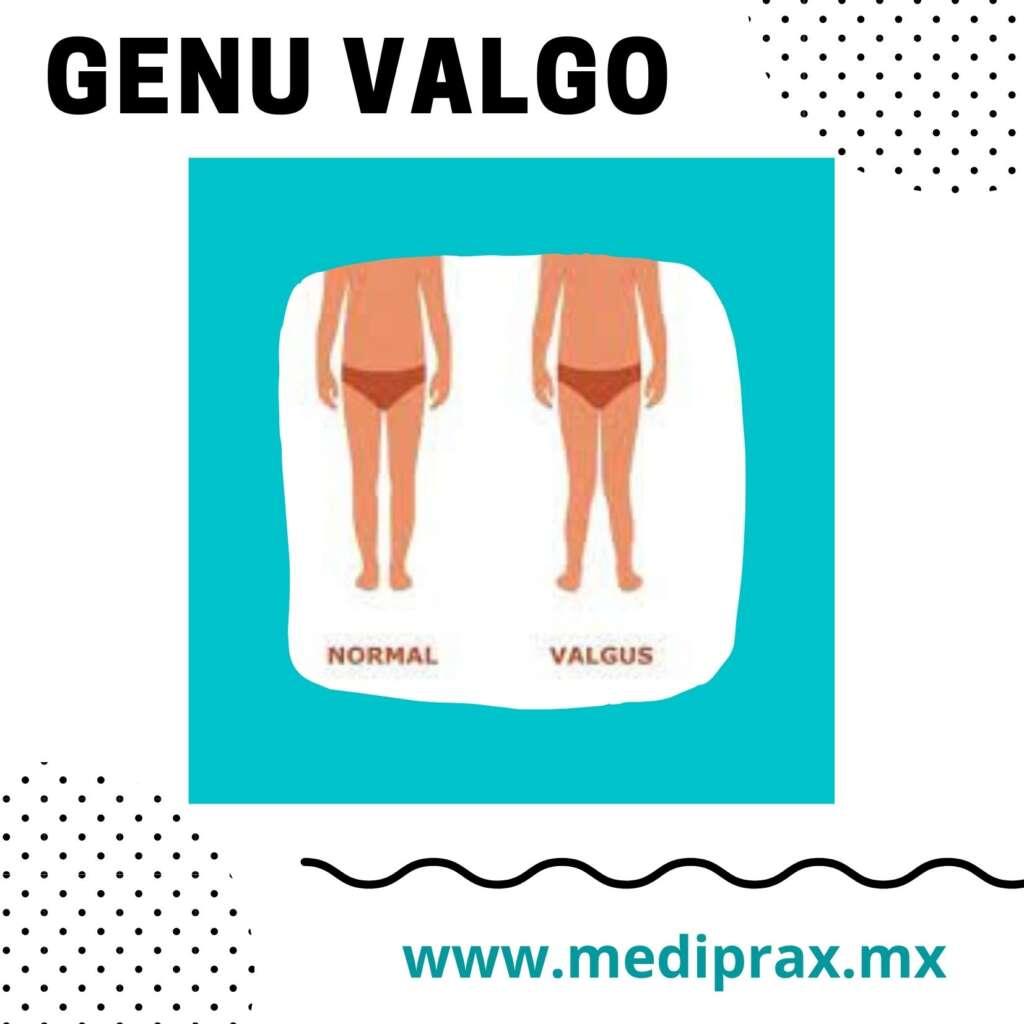 genu-valgo-en-niños-con-síndrome-de-down (3)