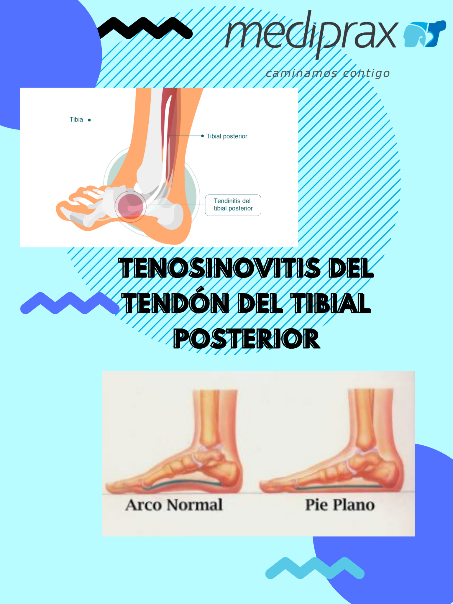 lesión-del-tibial-posterior
