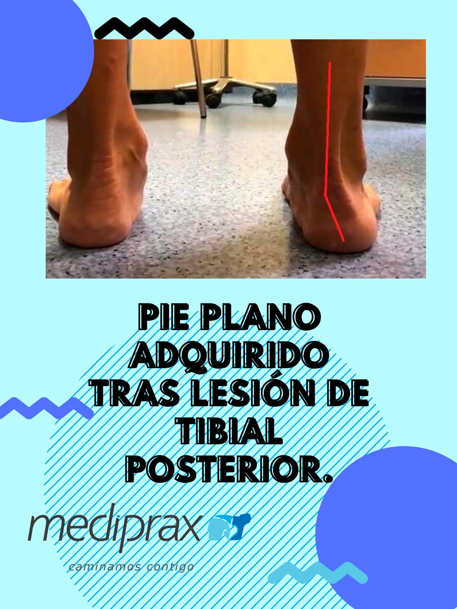 pie-plano-adquirido-tras-lseión-del-tibial-posterior