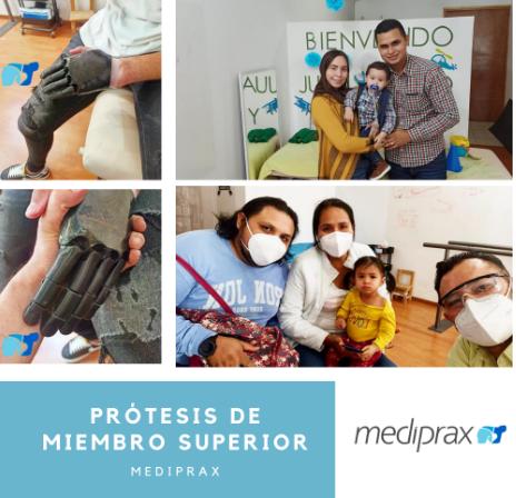 protesis-de-miembro-superior