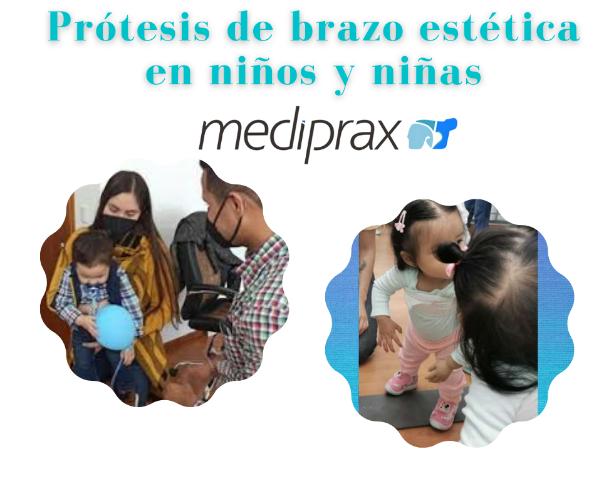 protesis-estetica-de-brazo-para-niños