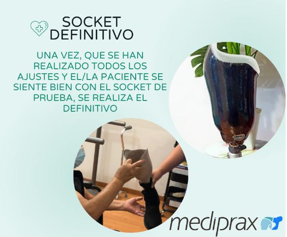 socket-definitivo-para-una-prótesis-de-pierna