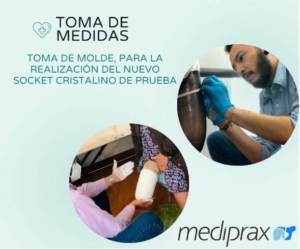 toma-de-medidas-para-socket-de-prótesis